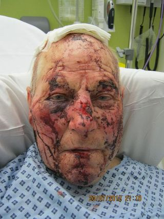 Hero+pensioner+Joe+Carter+aged+82+who+chased+after+two+burglars+after+they+broke+into+his+home+in+Guildford+and+beat+him+up