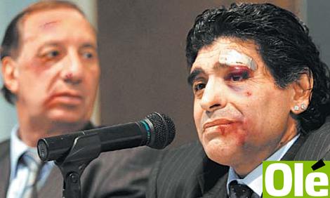 Maradonabruised